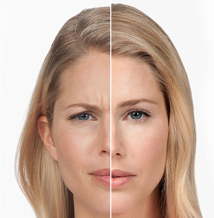 Botox Injections Tampa FL | Dysport injectables - Tre MedSpa